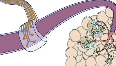 The image shows a flexible electrode that is connected to a nerve. The nerve is represented as a purple colored tube. The electrode consists of six circular metal parts each equipped with a small tip that goes into the nerve. A metallic conducting track leads to any of these electrode ends. The tracks are embedded in a transparent band.